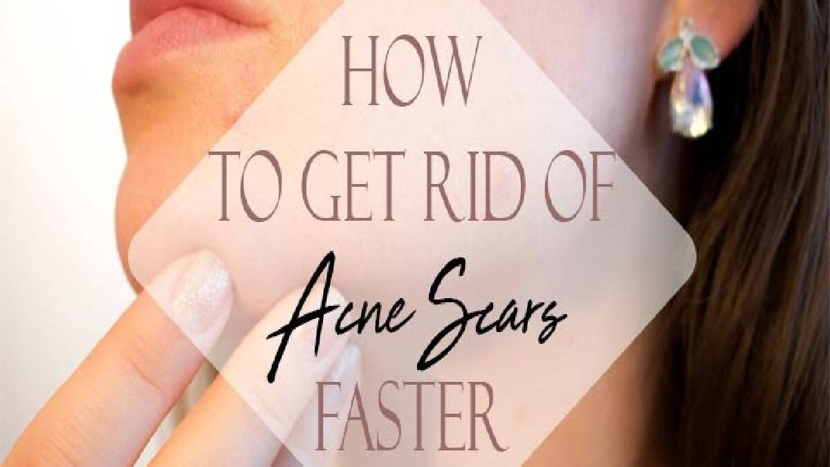 How to Get Rid of Acne Scars? – Hydroquinone, Retinoids, and More