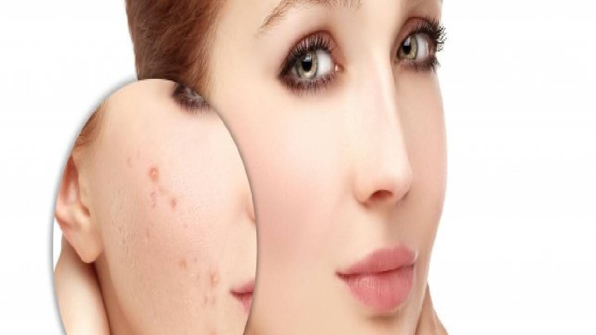 Red Mark From Acne – Past Acne Marks, Treatment of Red Marks, and More